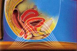 Urinary Incontinence Treatment EXMI Jupiter Florida